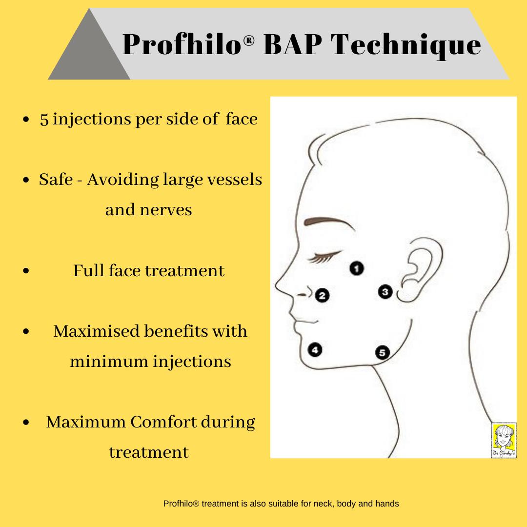 Profhilo BAP Injection Technique