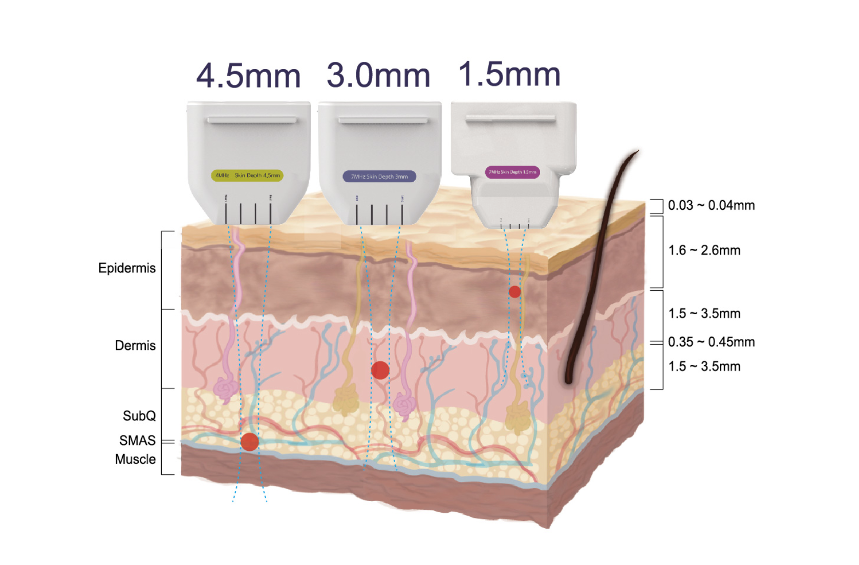 Safe and non-invasive Ultherapy® Skin Diagram