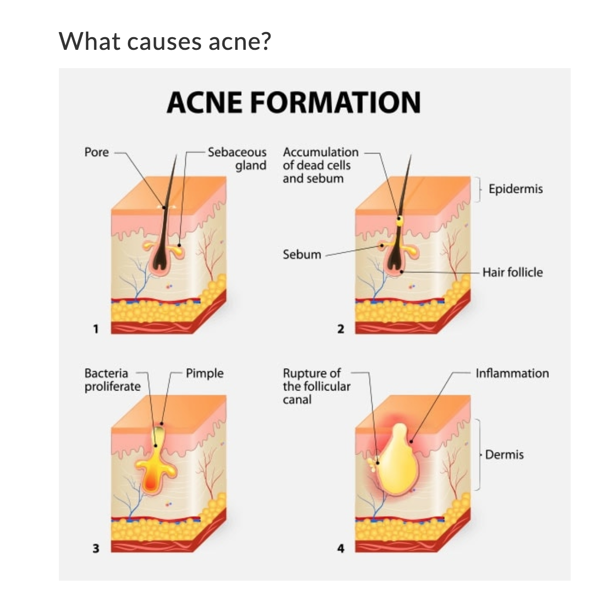 How Acne forms By Dr cindy Medical Aesthetics