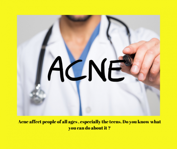 What causes Acne & Acne Scars and treatments available