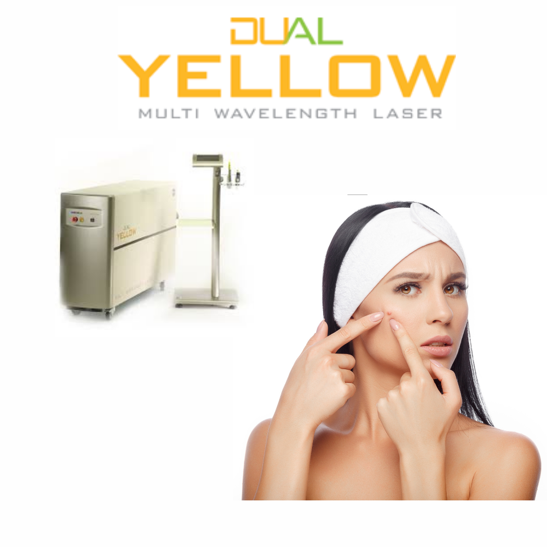 Dual Yellow laser at Dr Cindy's Medical Aesthetics