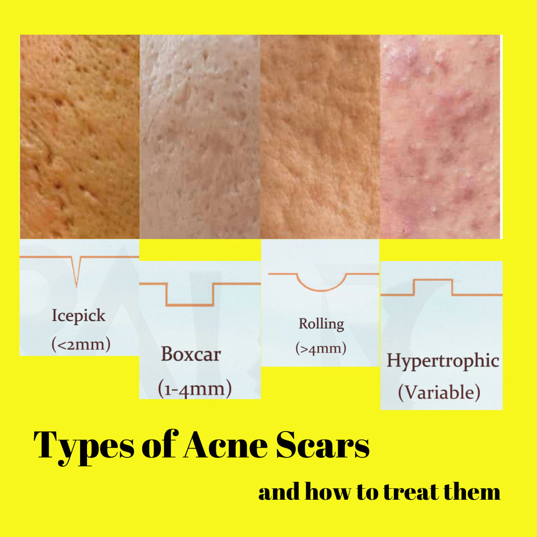 Acne & acne scars and the treatments available to treat the condition