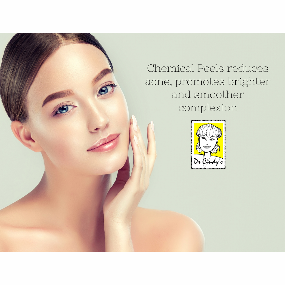 Chemical peels effectively reduces acne and acne scars
