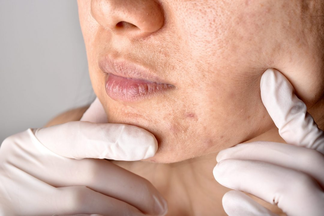 Acne Treatment in Singapore